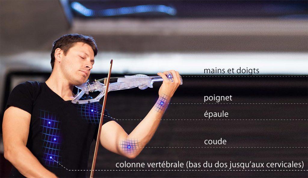 Douleurs du violoniste